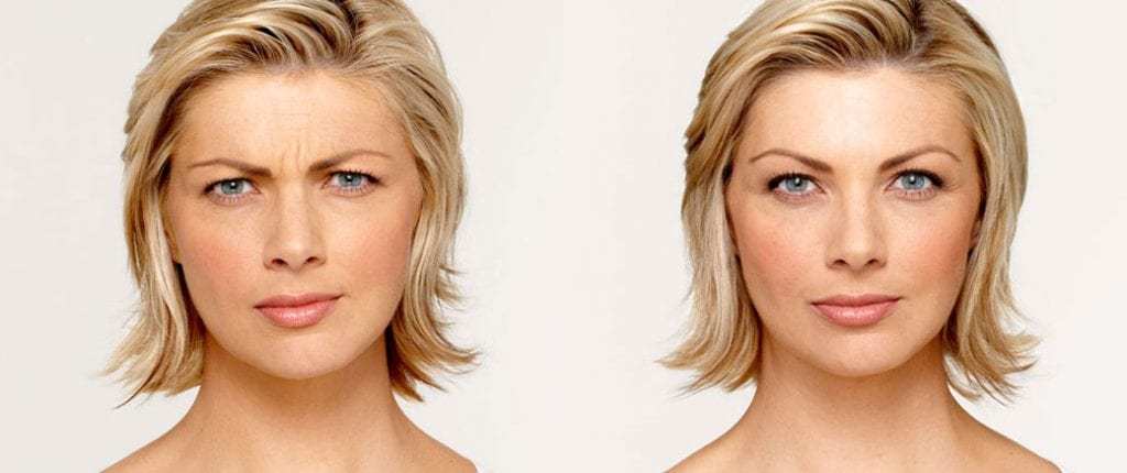 Before and after, Image courtesy of BOTOX® Cosmetic