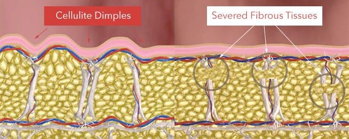 Fibrous Tissue Diagram