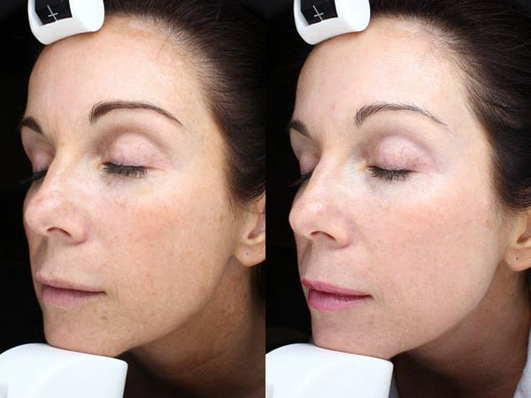 Halo Hybrid Fractional Laser Before and After Treatment Patient 2