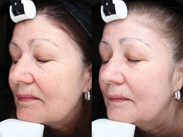 Halo Hybrid Fractional Laser Before and After Treatment Patient 3