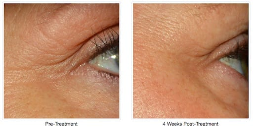 Before and after Alastin Treatment
